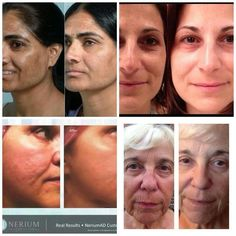 Do you have skin?  Then Nerium will work for you…great on all skin types.  GET YOURS NOW! http://www.getyoursnow.nerium.com