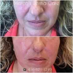 cheeks and laughline improvement . 🇨🇦 ☎️416-821 1249 #laughlines #cheeks #cosmetics #beauty #jawline #lowerface #droopyface #botox #fillers #nonsurgicallaughlines #midfaceenhancement #midfacelift #laughlinesimprovements #facialrejuvenation #antiaging #richmondhill #newmarket #torontolife#beauty #lookingyonger #skincare #toronto beauty#cosmetics #skinhealth #beauty #antiaging