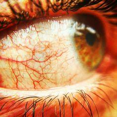 Veins eye