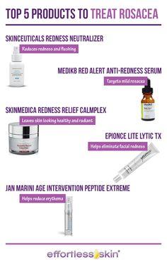 Top 5 Rosacea Treatments