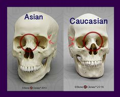Understanding the differences between the anatomical structure of Asian eyes and Caucasian or Occidental eye shapes.