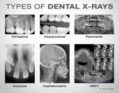 Are dental x-rays safe? Get the important facts about the radiation dose and safety of dental x-rays on simple charts. Routine dental x-rays are safe. Dental Assistant Study, Dental Hygiene Student, Dental Procedures, Dental Humor, Dental Hygienist, Medical Students, Nursing Students, Dentist Jokes, Dental World