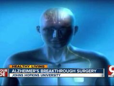 Doctors at Johns Hopkins University are experimenting with a breakthrough surgical procedure that will hopefully help combat Alzheimer's disease. Alzheimer's Treatment, Scrub Life, Johns Hopkins University, Alzheimers, Regency, Baltimore, Doctors, Surgery, Schools