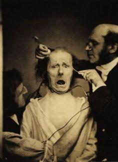 Fotografias científicas do século XIX : Guillaume Duchenne – Experimento de fisiologia