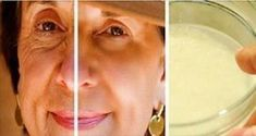 THOUSANDS OF WOMEN ARE USING THIS HOMEMADE CREAM TO REJUVENATE THEIR FACIAL SKIN AND GET RID OF WRINKLES! YOU WILL LOOK 10 YEARS YOUNGER OVERNIGHT (RECIPE) #homemadewrinklecreamsfacials