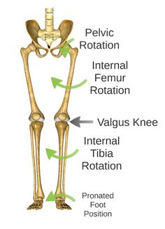Plantar Fasciitis: It's All in the Hips?