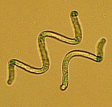 ☆ Spirulina Alge, Plant Based Diet, Animal Kingdom, Health, Recipes, Loosing Weight, Spirulina, Names, Health Care