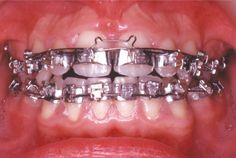 If you can remember braces in the you might recall visions of large, bulky, metal braces. For those of us lucky enough to wear braces in the you had to have a large single band placed on each tooth. And are you ready for this? Dental Braces, Dental Care, Braces Problems, Braces Girls, Brace Face, Perfect Teeth, Some Things Never Change, Orthodontics, Dentistry