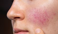 HÅP: Det finnes reseptbelagte salver og kremer med vitenskapelig bevist effekt, som ikke inneholder antibiotika. - Jeg anbefaler virkelig disse, sier hudlege Per-Håkon Olausson. Foto: Shutterstock Natural Remedies For Rosacea, Rosacea Remedies, In Vivo, Acne Blemishes, Hormonal Acne, Remove Acne, Skin Care Regimen