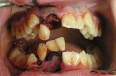 Poor #oralhealth can make you susceptible to other health conditions.  #Antiaging and Your Healthy #Mouth