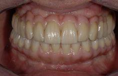 Mini Dental Implants – New York, Albany – Dr. Michael Tischler