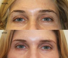 The New Way Fillers Are Being Used to Boost Collagen Without - Insider Tip - DailyBeauty - The Beauty Authority - NewBeauty