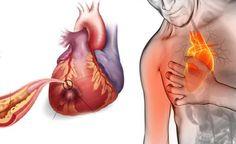 Trigliseridlere, lipidlere, kan şekerine ve kolesterole elveda deyin