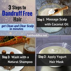 Scalp Remedies How to Get Rid of Dandruff: 3 Steps to Dandruff Free Hair - Are you tired of dandruff? These natural remedies can bring instant relief from the itch Hair Dandruff, Dandruff Remedy, Flaky Scalp, Getting Rid Of Dandruff, Hair Remedies For Growth, Natural Yogurt, Step By Step Hairstyles, Natural Shampoo, Natural Health Remedies
