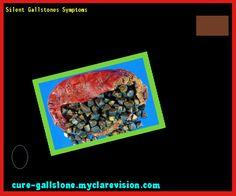 Silent Gallstones Symptoms 154057 - Cure Gallstone