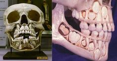 La ciencia es bella: No es de un alien, es un cráneo de un niño con dientes de leche