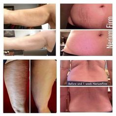 Nerium firm contouring cream is doing the job for so many people.  # changing lives