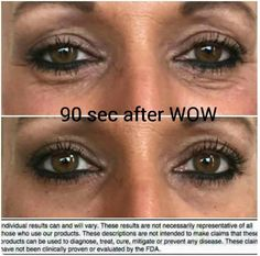 Our Wow product!  Results after 90 seconds! Katieraerollins.myitworks.com #wow  #wrinkle #itworks