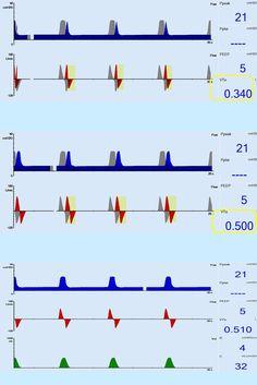 progression of auto trigger from ventilator graphics identifying