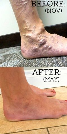 My Varicose Veins Story - ALL Your Questions Answered! - Fun Cheap or Free Varicose Vein Remedy, Varicose Veins Treatment, Health Remedies, Home Remedies, Natural Remedies, Health Diet, Health Fitness, Health Care, Health And Wellbeing