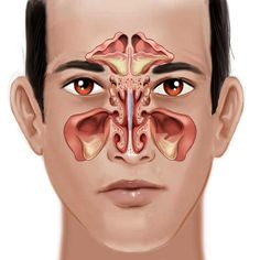 Best Quality, Original and Unique Sinus Infections Private Label Rights Articles. Sinus Infections PLR Articles With Private Label Rights. Infection Des Sinus, Upper Respiratory Infection, Ear Congestion, Paranasal Sinuses, Maxillary Sinus, Neck Hurts, Ent Doctor, Latin Dance