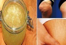 DIY beauty & Face masks : Illustration Description Get Rid of Stretch Marks and Cellulite Forever Using This Homemade Exfoliator -Read More – Combattre La Cellulite, Cellulite Remedies, Reduce Cellulite, Cellulite Exercises, Stretch Mark Removal, Stretch Marks, Homemade Exfoliator, Exfoliating Peel, Corps Parfait