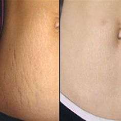 How To Remove Stretch Marks - Natural Treatment for Stretch Mark Scars