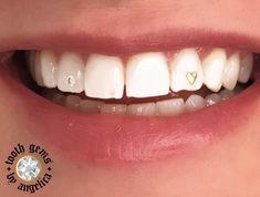 gold heart with swarovski crystal 💛 Smiley Piercing, Cute Ear Piercings, Gems Jewelry, Body Jewelry, Lighten Hair Naturally, Dental Jewelry, Long Beach, Diamond Teeth, Grills Teeth