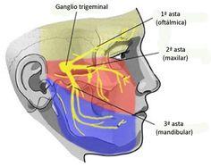 Dolor de cabeza IV: Neuralgia del trigémino
