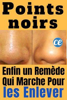 Vicks Vaporub, Self Care Activities, Homemade Face Masks, Blackhead Remover, Pimples, Body Care, Paris, Servent, The Cure