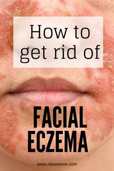 How to get rid of eczema on the face with natural remedies. Up to 40 natural and DIY remedies to get rid of facial eczema. remedies baking soda remedies diy home remedies skin care remedies sore throat remedies treats Facial Eczema, Psoriasis On Face, Psoriasis Diet, Rosacea, Facial Care, Home Remedies For Eczema, Skin Care Remedies, Health Remedies, Natural Remedy For Hemorrhoids