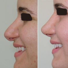 Bulbous Nasal Tip Is A Very Common Nasal Cosmetic Complaint Facial Cosmetic Surgery, Bulbous Nose, Rhinoplasty Before And After, Aesthetic Dermatology, Big Noses, Plastic Surgery, Make Up, Cosmetics, Face