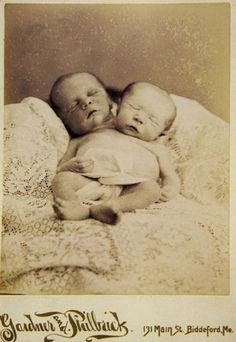 Memento mori photograph of conjoined twins