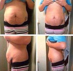 Stomach Wrap On Pinterest Skinny Wrap Weight Loss Wraps