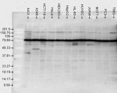 Western blot analysis of in various cell lines, using a dilution of Polyclonal Antibody Heat Shock Protein, Cell Line, Thing 1