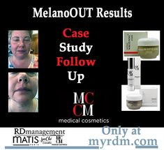 Treatment Rooms, Skin Care Treatments, Cosmetic Companies, Upper Lip, Brown Spots, Case Study, Acting, Skincare, Management