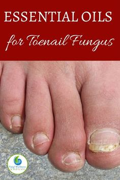 Discover the Best Essential Oils for Toenail Fungus! Finding the best essential oils for toenail fungus can help you fight this ugly nail infection naturally without resorting to chemical laden medications. Toenail fungus may not Essie, Foot Fungus Treatment, Best Toenail Fungus Treatment, Nail Treatment, Toenail Fungus Remedies, Toe Fungus, Fungus Toenails, Essential Oils, Natural Home Remedies