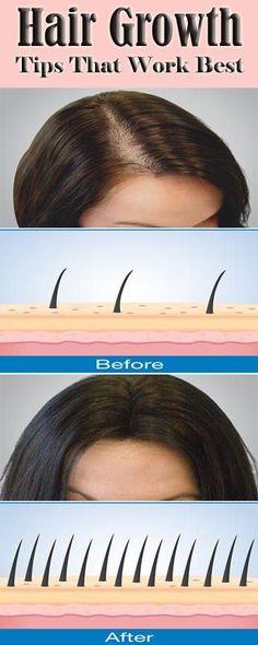 13 Powerful Hair Growth Tips That Works Wonders !