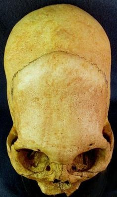 Differences between the cone head skulls and ours :: El Libertario