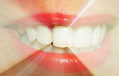 Professional whitening teeth whitening tips,cosmetic dental practice w dental care,best way to get rid of tartar buildup wisdom teeth dentist. Teeth Whitening Methods, Whitening Skin Care, Natural Teeth Whitening, Oral Health, Health And Wellness, Halitosis, Coconut Oil Pulling, Natural Home Remedies, Health And Beauty Tips