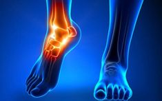 Ankle Flexibility, Ankle Mobility, Peripheral Neuropathy, Nerve Problems, Ankle Pain, Heel Pain, Sore Feet, Crps, Body Fitness