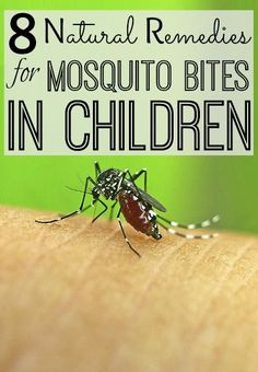 8 Effective Natural Remedies To Cure Mosquito Bites In Children: