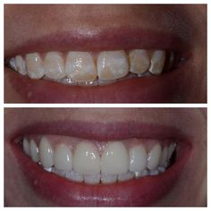 We created this #beautifulsmile with ten #porcelainveneers to create a #hollywoodsmile. Dr. Wilderman is the 2010 and 2014 and 2016 winner of #bestofphilly top #cosmeticdentist award. His passion for #cosmeticdentistry and #smilemakeover results in natural looking #teeth. Artistic Expressions Dentistry is located in the #philadelphia suburb of #doylestown. All #beforeandafter photos are our actual patients. www.MasterpieceSmile.com by artisticexpressionsdentistry Our Cosmetic Dentistry Page…