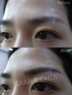 Semipermanent eyebrows tattoo. It's the newest style of eyebrows tattoo calls 3D tattoo/ hair stroke tattoo.  My customer has a stitch scar on her eyebrows. I covered its with hair stroke tattoo.