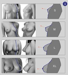 Female breast from Anatomy for Sculptors