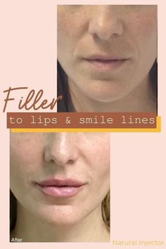 Beautiful lip filler done on this client to increase the size of the lips using a NATURAL INJECTOR approach.   #lipfiller #fillerbeforeandafter #beforeandafter #fillers #facefillers #lipfillers  #liquidfacelift #naturalinjector #losangeles #middleaged #agingtips #agingskincare #agingskin #cosmeticinjections #lips