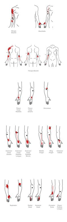 trigger point referral pain pattern for the elbow & forearm