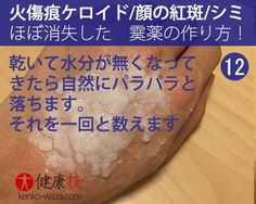 【なんと!】火傷痕ケロイドや顔の紅斑もほぼ消失する霙(みぞれ)薬の作り方12