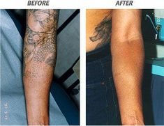 65 Best Tattoo Removal Before and After images | Laser tattoo ...