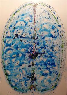 Las conmociones cerebrales podrían estar relacionadas con la enfermedad de Alzheimer